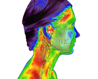 infrarood-screening