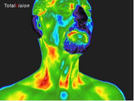 Thermogram van een patiënt met een aangetoonde  hypotheroidie en ontstoken arteria carotis.