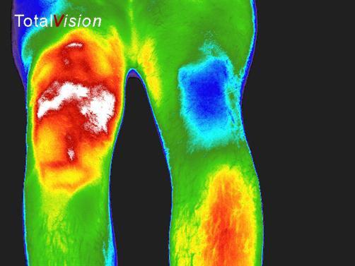 infrarood foto knie voor behandeling