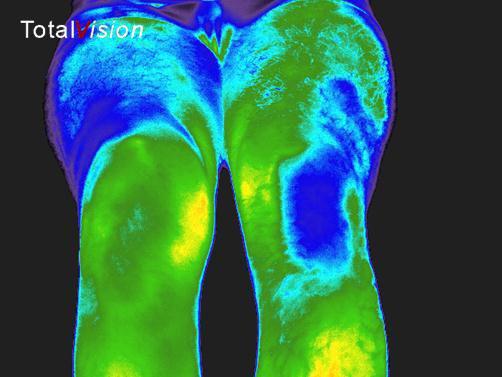 infrarood foto na behandeling